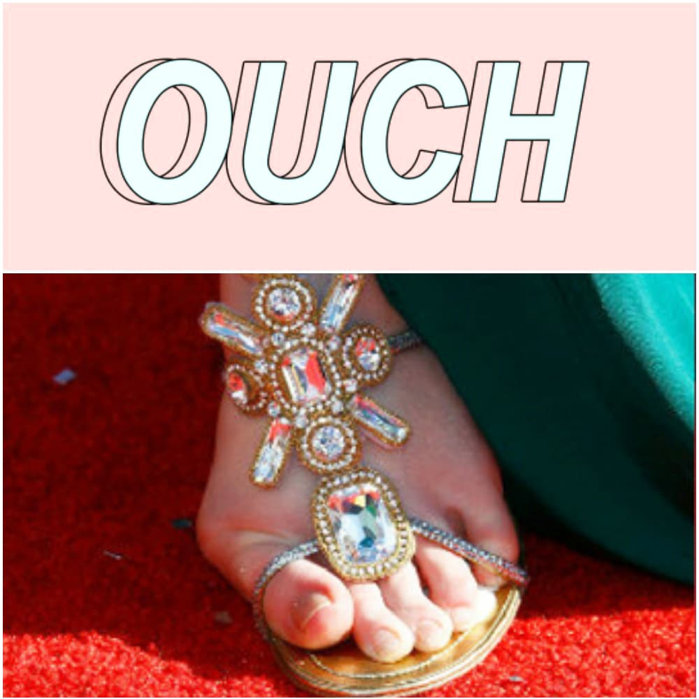 Foot with bunion collage